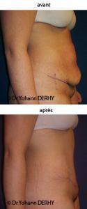 Abdominoplastie - Cliché avant - Dr Yohann Derhy