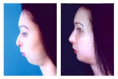 Chin Surgery - Photo before - Doc. MUDr. Jan Válka