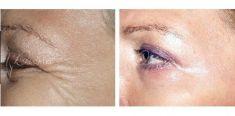 Botulinum toxin - Wrinkle Removal - Photo before - Violeta Skorobać Asanin MD, PhD