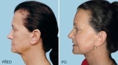 Facelift (operace obličeje), SMAS lifting - kompletní face a SMAS lift včetně liftu čela a krku
