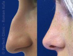 Rhinoplasty (Nose Job) - Photo before - Perfect Clinic - centrum estetické medicíny