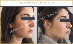Dr Nicolas Zwillinger - extraction de la graisse de Bichat par voie endo-buccale