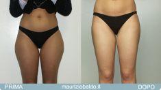 Liposuzione - Foto del prima - Dott. Maurizio Baldo M.D.
