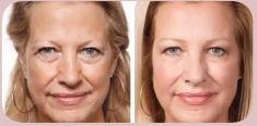 Botox/Dysport - Eliminar arrugas - Foto Antes de - Dra. Grissel Mayen