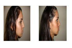 Dr. Nadir Salaues Hurtado Cirujano Plástico - Foto Antes de - Dr. Nadir Salaues Hurtado Cirujano Plástico