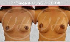 Augmentation mammaire (Implants mammaires) - protheses mammaires ronde 285 retro fasciales