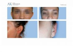 Korekcja uszu (Otoplastyka) - Zdjęcie przed - Klinika Chirurgii Plastycznej i Medycyny Estetycznej dr Andrzej Krajewski