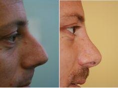 Rhinoplasty (Nose Job) - Photo before - MUDr. Patrik Paulis