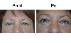 Operace očních víček (Blefaroplastika) - fotka před - Nemocnice Rudolfa a Stefanie Benešov, a. s.