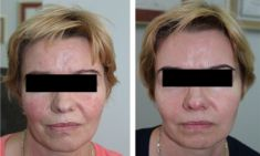 Spider veins laser removal (redness, birh marks) - Photo before - ARS ESTETICA – Klinika Medycyny Estetycznej i Laseroterapii