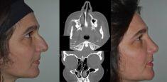 Rinoplastica - Si tratta di una correzione dei difetti estetici e funzionali del naso (deviazione del setto nasale e/o ipertrofia dei turbinati)