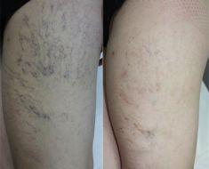 Laserowe leczenie żylaków EVLA - Zdjęcie przed - dr n. med. Wojciech Rybak - ARS ESTETICA