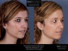 Cirugía de la nariz (Rinoplastia) - Resultado después de 1 año. Rinoplastia ultrasónica antes y después. Abordaje abierto