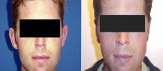 Ear surgery (Otoplasty) - Photo before - Dr. Dobos Calin