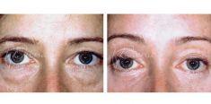Forehead lift  (Brow lift) - Photo before - Violeta Skorobać Asanin MD, PhD