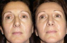 """Rinoplastica - La punta è stata resa """"triangolare"""". La cicatrice alla base del naso (columella) non è più visibile."""
