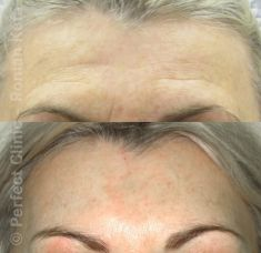 Forehead lift  (Brow lift) - Photo before