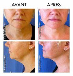 Chirurgie du double-menton - Cliché avant - Dr Christelle Santini