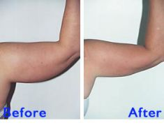 Liposuction - Photo before - Azim Jahangir Khan M.D.