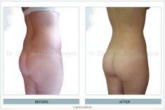 Liposucción - Foto Antes de - Dr. Daniel Robles Pereyra