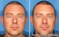 Dr Franck Benhamou - Cliché avant - Dr Franck Benhamou