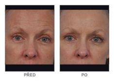 Rádiofrekvenčná  rejuvenácia(Aluma, accent, TriPollar, Spa RF, Re-Age) - Fotka pred - Klinika YES VISAGE - klinika estetickej medicíny a plastickej chirurgie