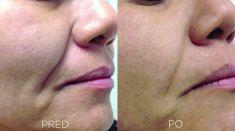 Neinvazívny lifting - Odstránenie naso-labiálnej vrásky pomocou Intraorálneho laserového 4D liftingu tváre