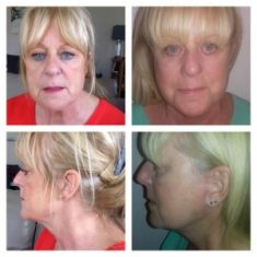 Facelift - A Facelift procedure is becoming more and more popular, not only among women, but men as well who wish for reducing the signs of aging, at the same time rejuvenating the facial features. Many specialists state that the aftermaths of the surgery can make a person to look even 10 years younger. Although, it should be taken into account that it does not stop the aging process but only minimize the signs of aging. As a result, the person looks fresh and is more confident.