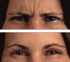 Botulinum toxin - Wrinkle Removal - Photo before - Mediestetik, skupina klinik