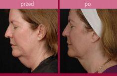 Lipofiling - przeszczep tłuszczu - Zdjęcie przed - HORIZON MEDICAL CENTER Klinika Medycyny Regeneracyjnej