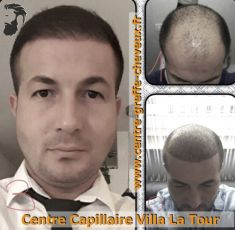Greffe de cheveux par FUE - Cliché avant - Centre Capillaire Villa La Tour