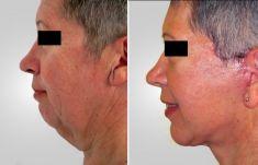 Facelift (operace obličeje), SMAS lifting - fotka před - Asklepion