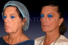 Lifting du visage - Cliché avant - Dr Sebastiano Montoneri