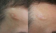 Scar removal - Photo before - ARS ESTETICA – Klinika Medycyny Estetycznej i Laseroterapii