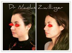 Bichectomia - Cliché avant - Dr Nicolas Zwillinger