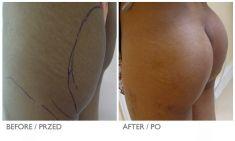Powiększanie i modelowanie pośladków i  bioder - Zdjęcie przed - Mandala Beauty Clinic