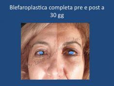 Blefaroplastica - Foto del prima - Dr. Luigi Maria Lapalorcia Specialista in Chirurgia Plastica Ricostruttiva ed Estetica
