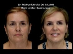 Lifting facial - Foto Antes de