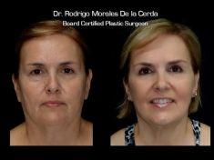 Dr. Rodrigo Morales De la Cerda - Photo before - Dr. Rodrigo Morales De la Cerda