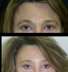 Facelift (operace obličeje), SMAS lifting - fotka před - MUDr. Libor Kment