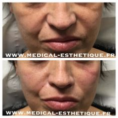 Injections de comblement - Cliché avant - Dr AMAT - ????Greffe FUE 2.0 Medic Xpert