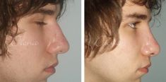 Rhinoplasty (Nose Job) - Photo before