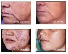 Kwas hialuronowy: Saypha, Restylane, Juvederm, Stylage - Zdjęcie przed - Slow Age Centrum Medycyny Estetycznej i Laserowej