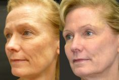 Botulinum toxin - Wrinkle Removal - Photo before - Dr Fadi Nukta