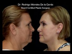 Facelift - Photo before - Dr. Rodrigo Morales De la Cerda