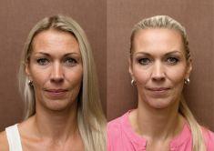 Odstranění vrásek pomocí botulotoxinu - Redukce výrazných mimických vrásek v horní polovině obličeje, především čela. Foto před ošetřením a 1 měsíc po aplikaci botulotoxinu.