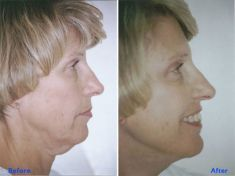 Facelift - Photo before - Azim Jahangir Khan M.D.