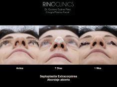 Cirugía de la nariz (Rinoplastia) - Resultado tras la reconstrucción septal extracorpórea mediante abordaje abierto.