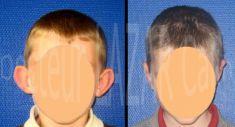 Dr Calin Constantin LAZAR - Correction voie ouverte à cicatrice rétro-auriculaire (enfant)