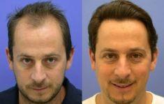 Wellness Kliniek Belgium - Implanter des cheveux: transplants capillaires: 4800 greffons selon la méthode microchirurgicale de transplantation capillaire.   Beau résultat surtout d'aspect très naturel.